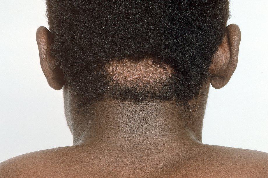 A keloid scar on the back of a man's head