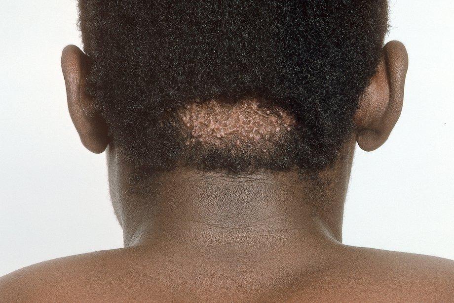 Keloid Scars Nhs