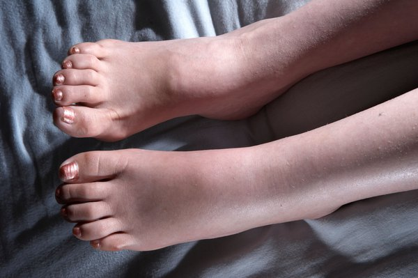 Swollen or puffy ankles, feet or legs