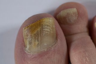 A fungal nail infection that's spread across a whole toenail.