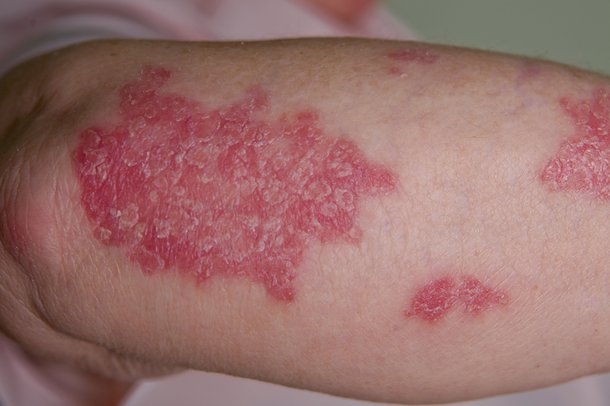 Picture of psoriasis rash