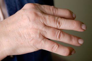 Close-up of a person's hand showing arthritis in the joints of the fingers