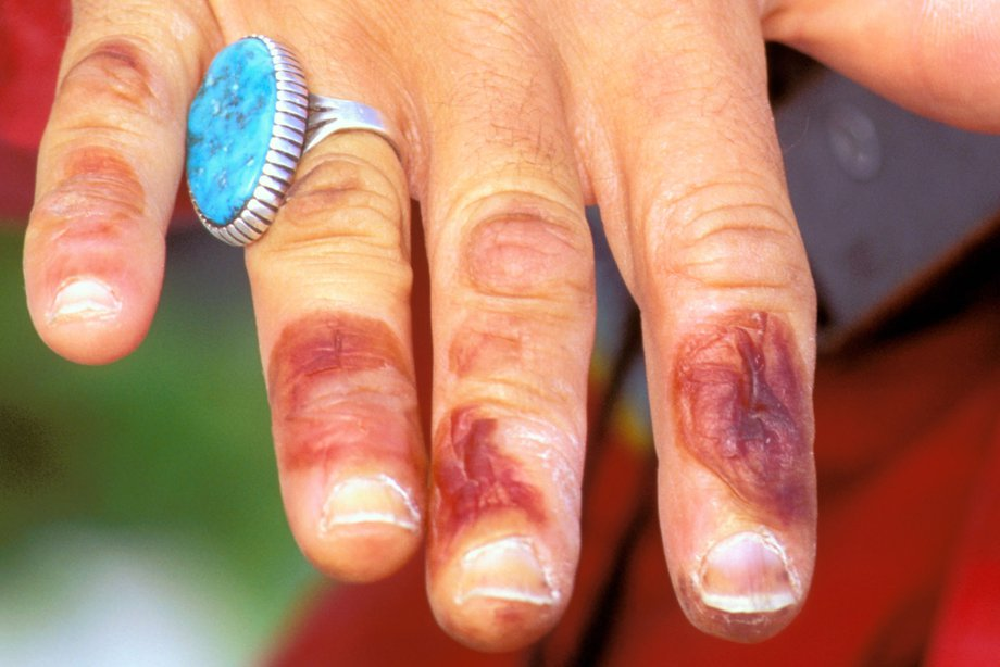 how to grow fingernails after biting