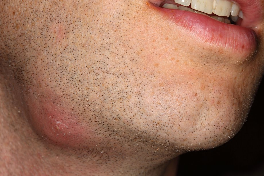 Picture of an abscess on a person's chin