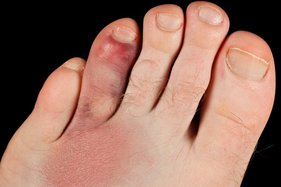 Picture of a broken toe