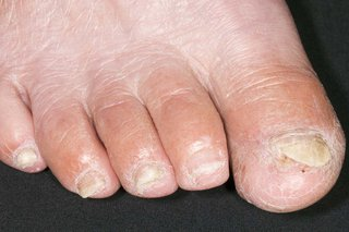 A fungal nail infection