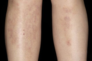 Erythema nodosum bumps on the shins