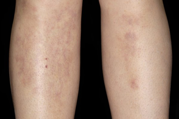 Erythema nodosum usually affects the lower legs, but can spread to other parts of the body.
