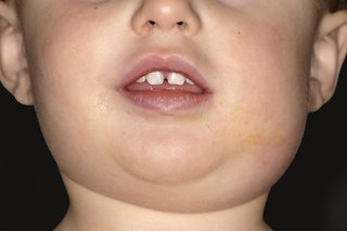 A child with a swollen face caused by mumps.