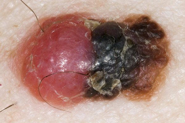 An example of melanoma with several colours