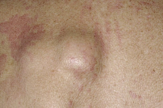 Lipoma on skin.