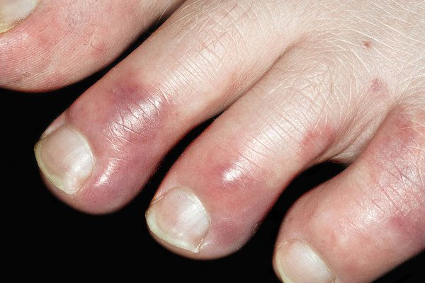 Symptoms: swelling, red or dark blue colour