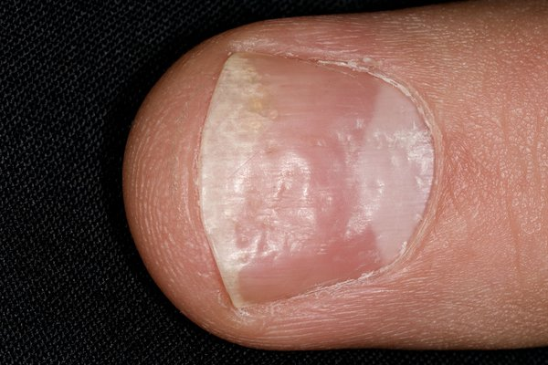 Small dents or pits in your nails can be a sign of nail psoriasis, eczema or alopecia