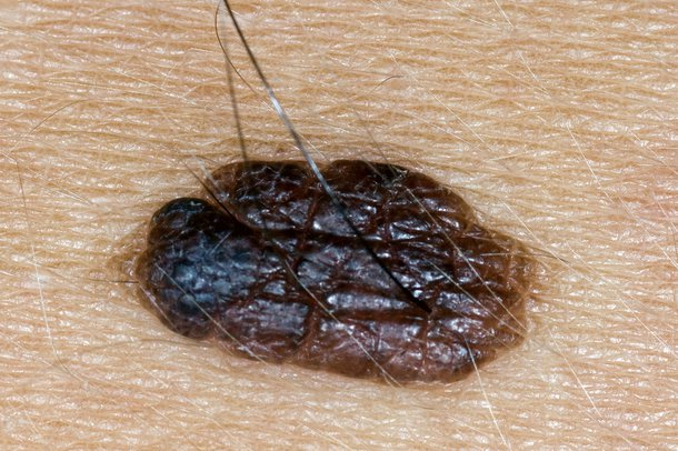 A harmless raised mole with hair growing from it