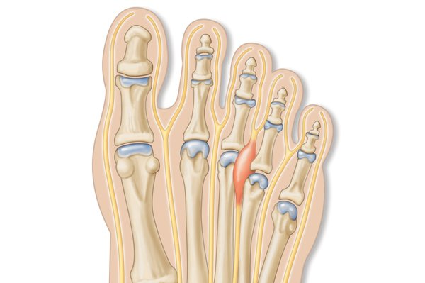 A picture showing the nerve between the 3rd and 4th toes that becomes irritated in Morton's neuroma