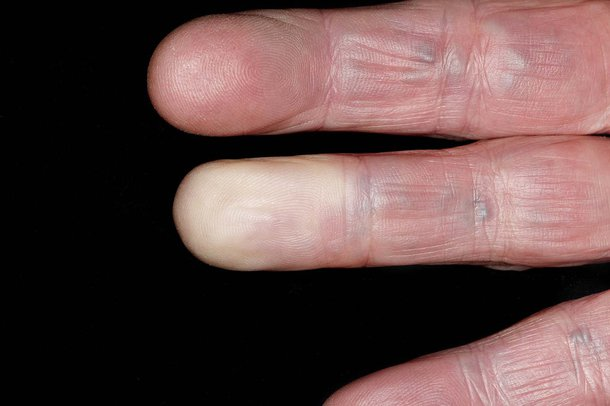 White fingers caused by Raynaud's