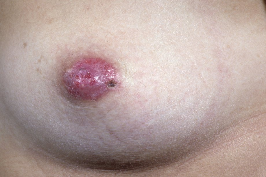 Picture of woman with Paget's disease of the nipple