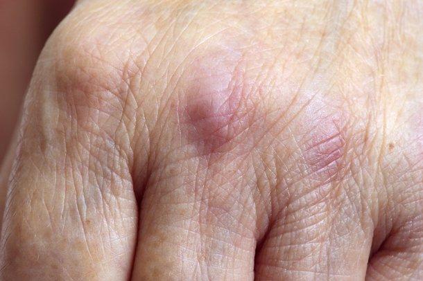 Picture of dermatomyositis rash