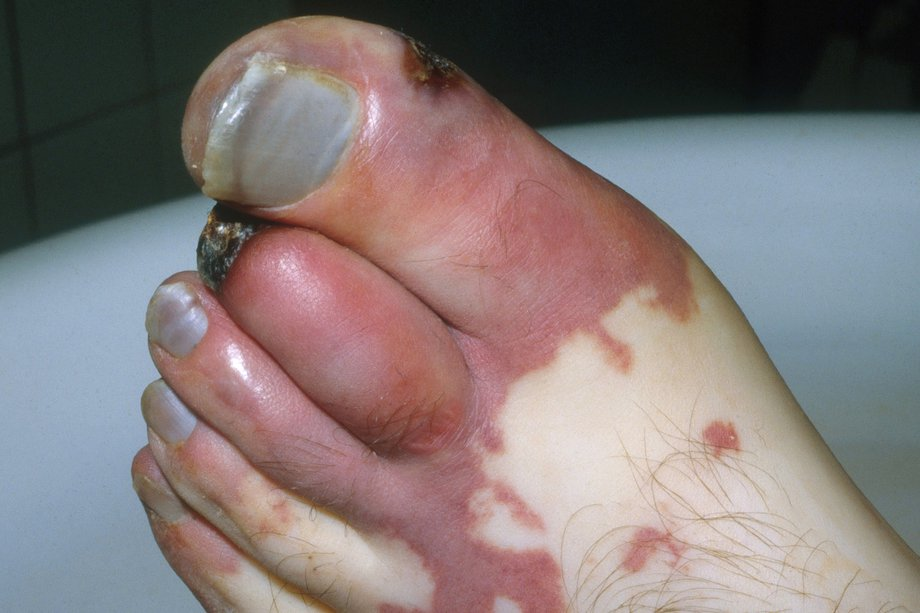 Picture of a foot affected by gangrene