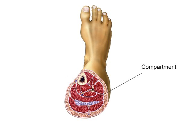 Picture of compartment syndrome