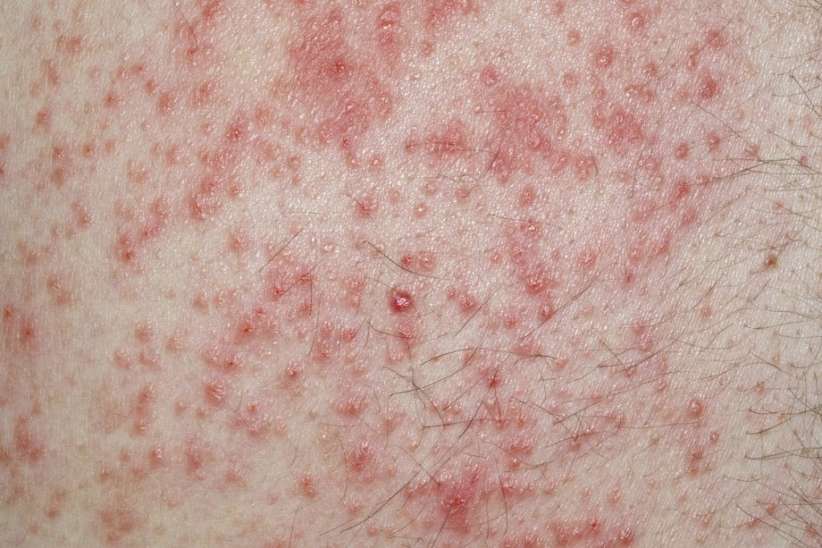 A sore rash of small red dots on white skin