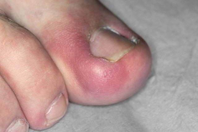 Red, swollen toe with ingrown big toenail.