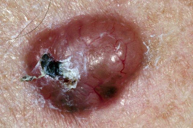 Non Melanoma Skin Cancer Nhs
