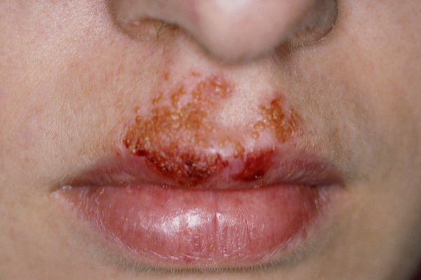 This could be impetigo, which often affects the face