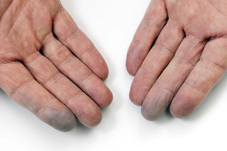 Blue fingertips caused by Raynaud's