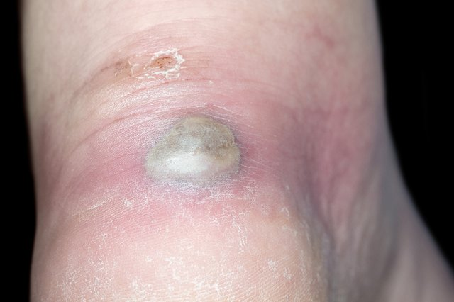 An infected blister full of green and yellow pus
