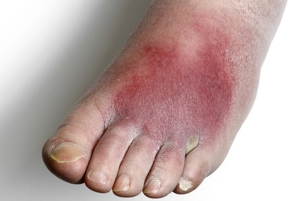 A foot affected by cellulitis