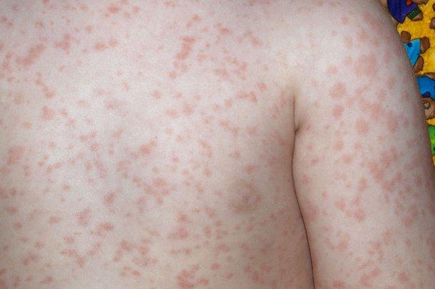 A slapped cheek syndrome rash on the body