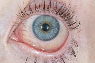 A red and watery eye caused by conjunctivitis