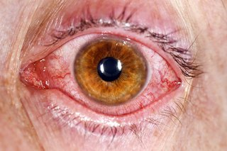 A red and gritty eye caused by conjunctivitis