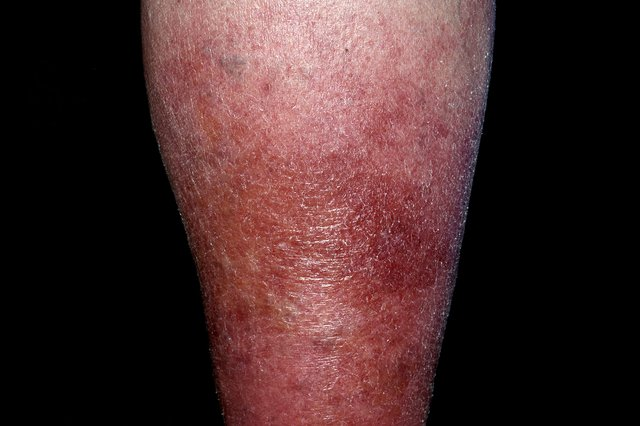 Cellulitis on the lower legs