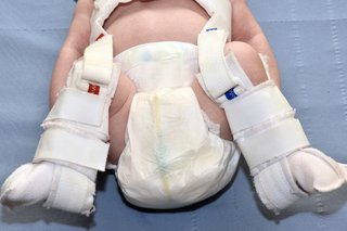 A Pavlik harness being used to secure a baby's hips