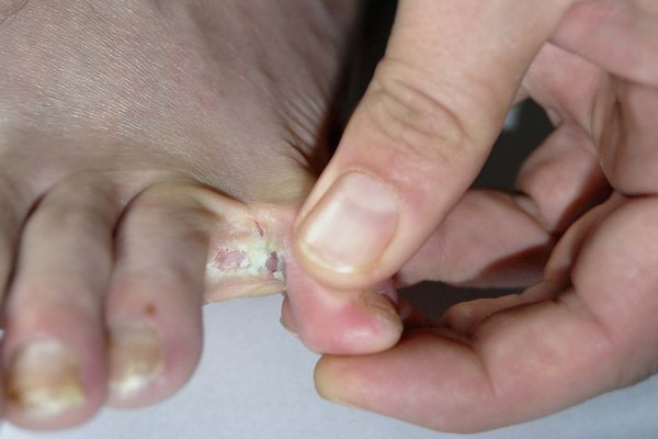 White patch between the toes caused by athlete's foot