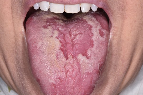 Blotchy, red patches on the tongue that have a white or light-coloured border