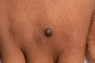 A dark brown wart on the back of a person's hand with a brown skin tone.