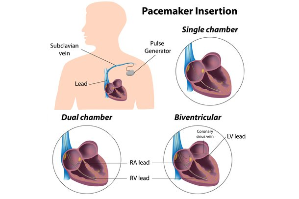 Diagram of different types of pacemaker