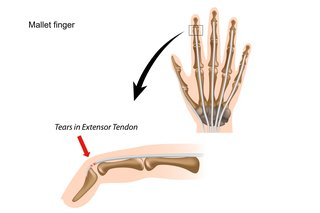Diagram of mallet finger