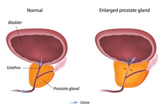 Diagram of a normal prostate and an enlarged prostate.