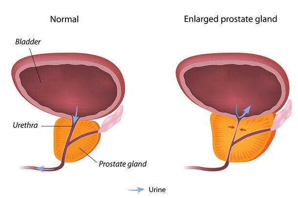 Diagram of normal prostate and enlarged prostate