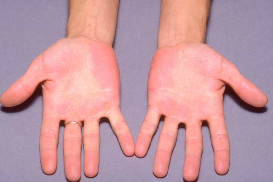 Red blotches on the hands caused by erythromelalgia.