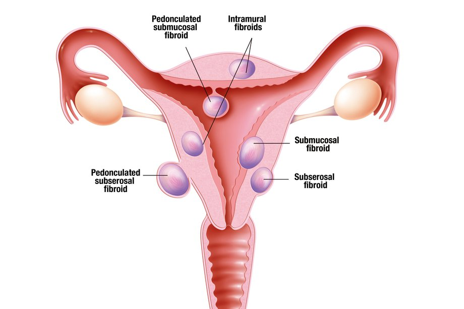 Diagram of different types of fibroids