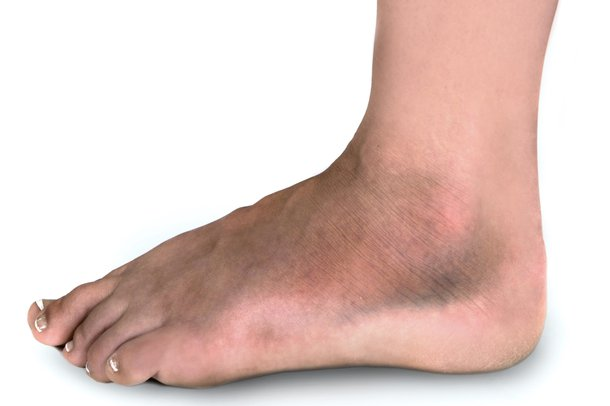 Picture of broken ankle