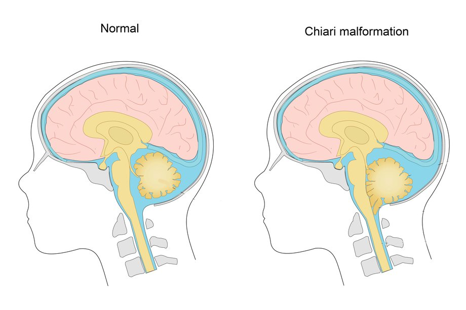 Diagram showing a Chiari malformation