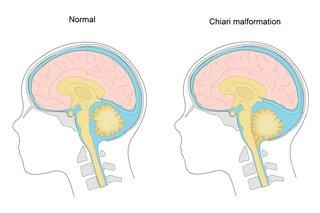 Diagram showing a Chiari malformation