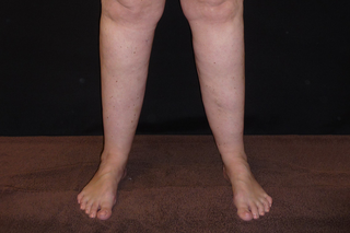 A person with enlarged lower legs and unaffected feet