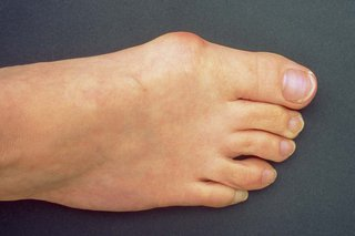 A bunion on a foot